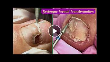 Grotesque Toenail Transformation Thick Fungal Toenails Cleaning Pedicure Tutorial