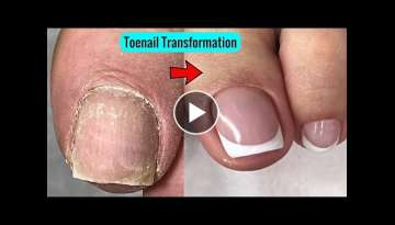 French Pedicure Tutorial Toenails Cleaning Transformation - Best Pedicure Ever
