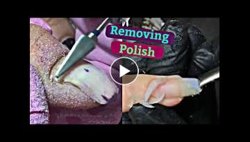 Thick Nails Deep Cleaning And Removing Gel Polish With Nail Manicure Procedure