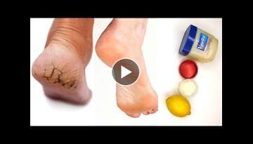 Simple home remedy yo get rid of cracked heel in 3 days