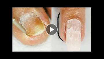 WHAT ARE THOSE? How to Nail Cleaning | Best Makeup Tutorials 2018 | Makeupholic