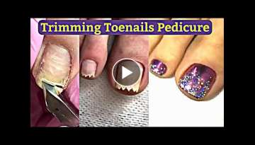 Pedicure: Pretty Toenails Transformation