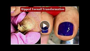 Ripped Toenail Treatment Professional Pedicure Tutorial Gross To Great Foot Cleaning Transformati...